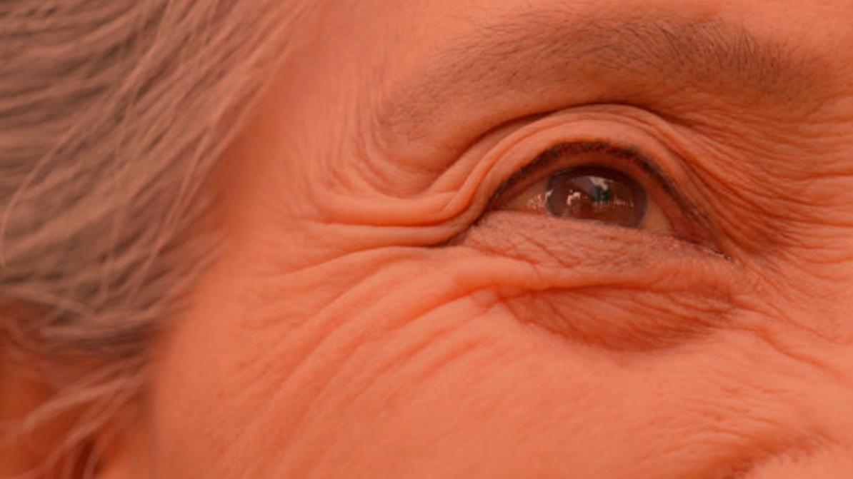 Condenados a envejecer